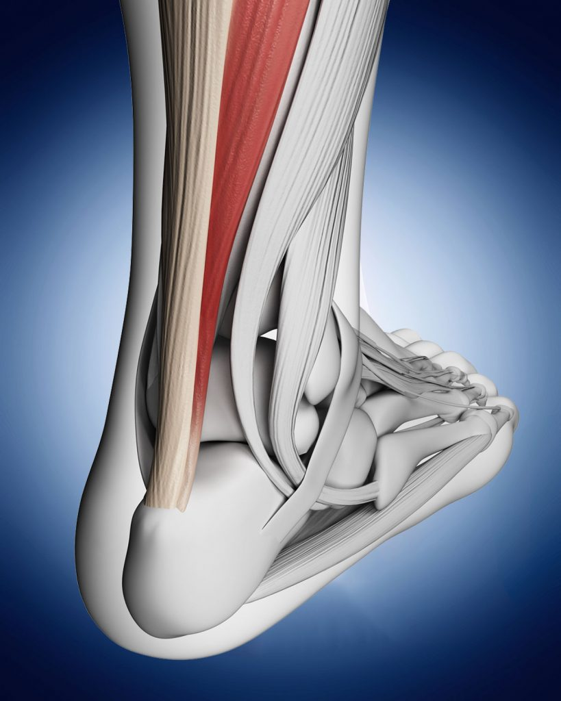 Achilles Tendonitis Physiotherapy Treatment