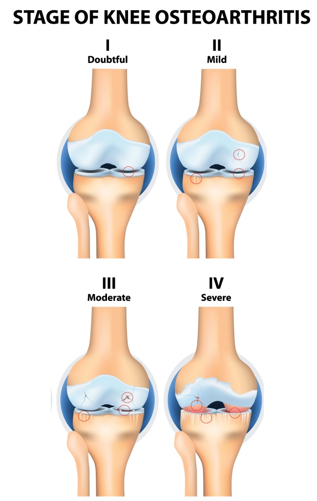 Knee Arthritis Physiotherapy Treatment